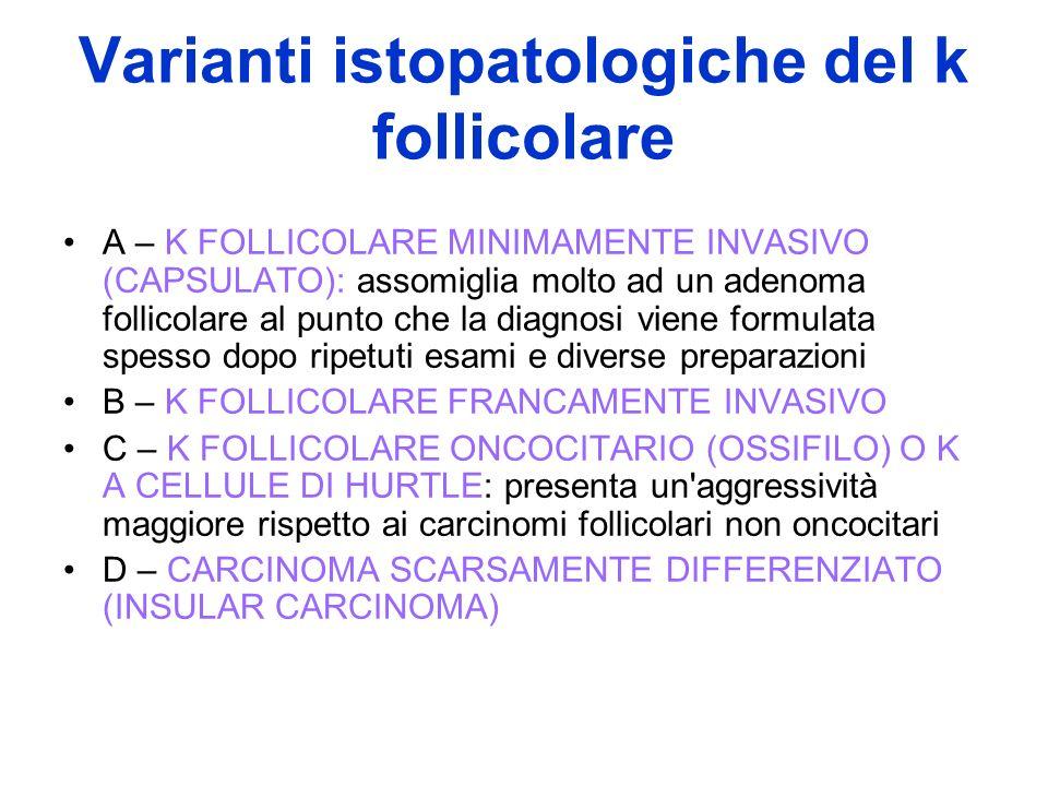 Varianti istopatologiche del k follicolare A – K FOLLICOLARE MINIMAMENTE INVASIVO (CAPSULATO): assomiglia molto ad un adenoma follicolare al punto che
