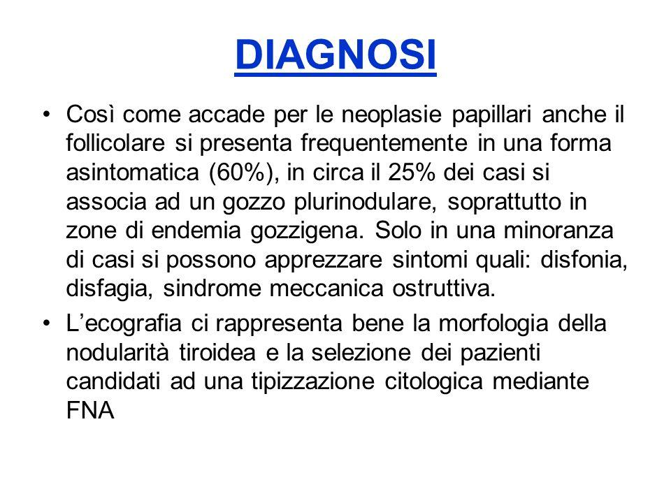 DIAGNOSI Così come accade per le neoplasie papillari anche il follicolare si presenta frequentemente in una forma asintomatica (60%), in circa il 25%