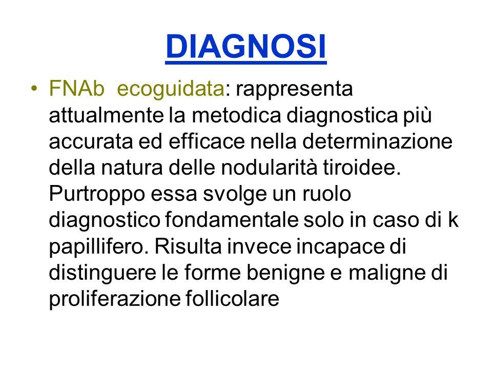 DIAGNOSI FNAb ecoguidata: rappresenta attualmente la metodica diagnostica più accurata ed efficace nella determinazione della natura delle nodularità