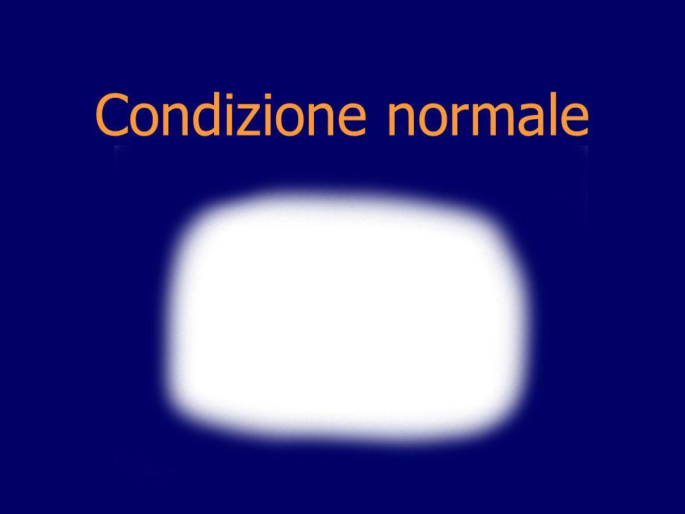 Condizione normale