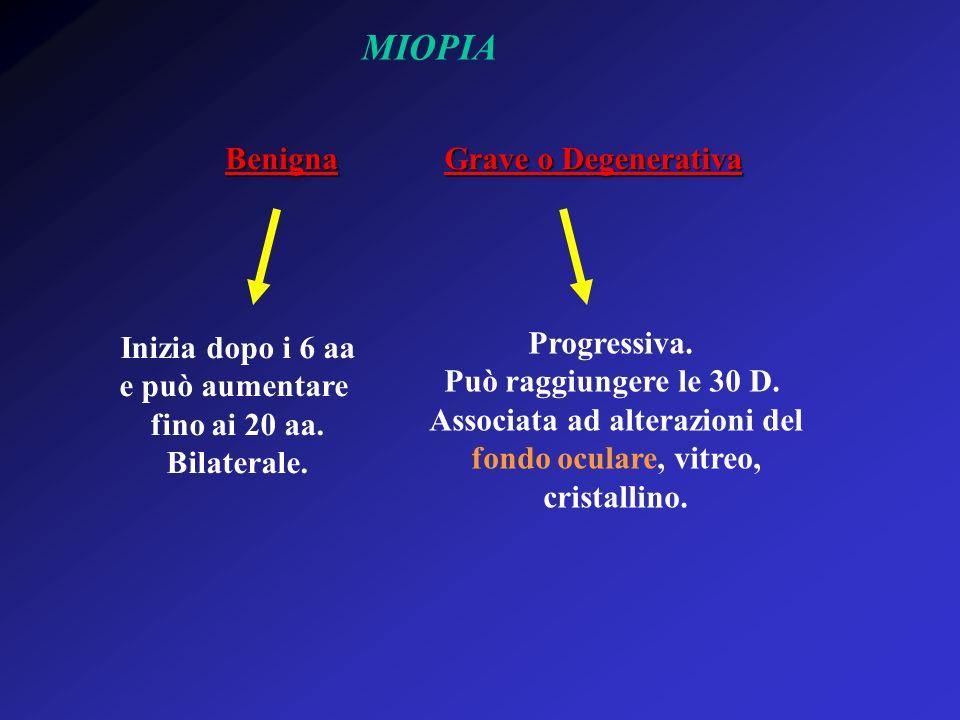 MIOPIA Benigna Grave o Degenerativa Inizia dopo i 6 aa e può aumentare fino ai 20 aa. Bilaterale. Progressiva. Può raggiungere le 30 D. Associata ad a