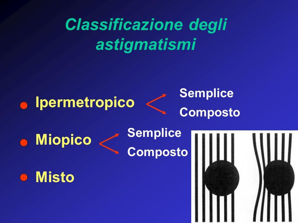 Classificazione degli astigmatismi Ipermetropico Miopico Misto Semplice Composto Semplice Composto
