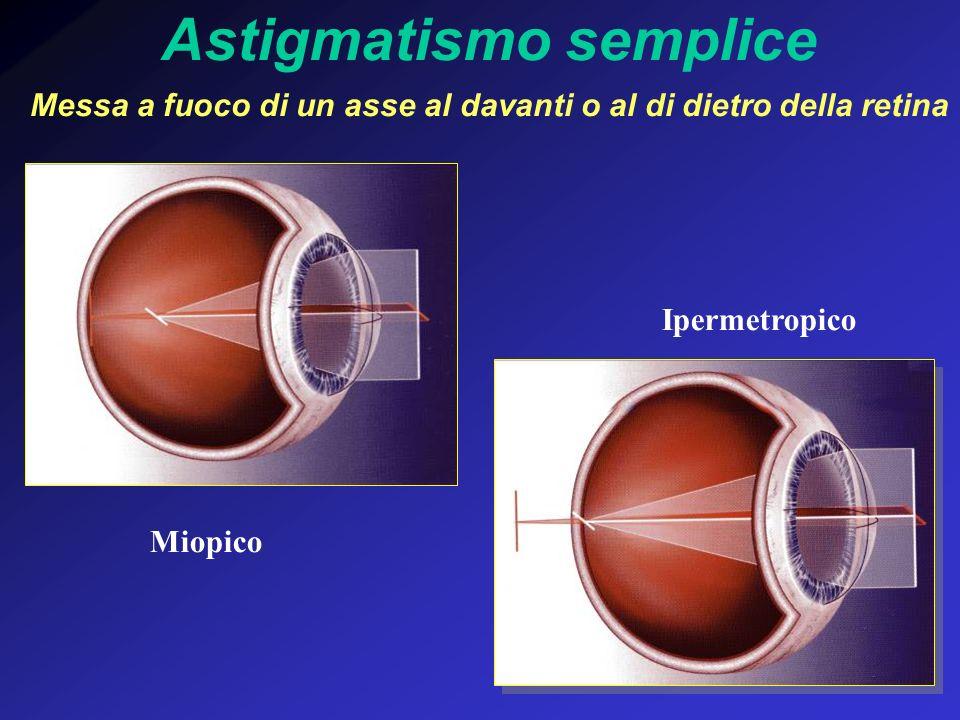Astigmatismo semplice Messa a fuoco di un asse al davanti o al di dietro della retina Ipermetropico Miopico