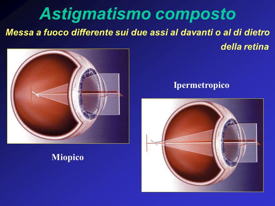 Astigmatismo composto Messa a fuoco differente sui due assi al davanti o al di dietro della retina Miopico Ipermetropico