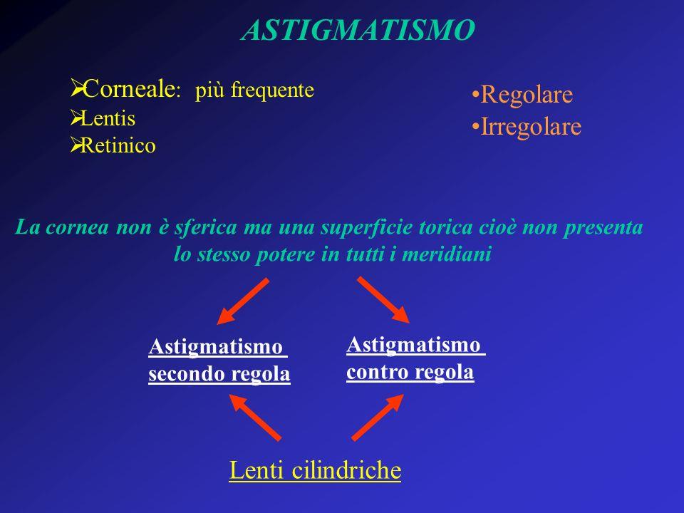ASTIGMATISMO Corneale : più frequente Lentis Retinico Regolare Irregolare La cornea non è sferica ma una superficie torica cioè non presenta lo stesso