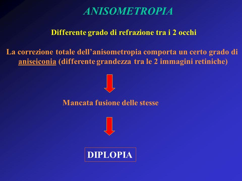 ANISOMETROPIA Differente grado di refrazione tra i 2 occhi La correzione totale dellanisometropia comporta un certo grado di aniseiconia (differente g