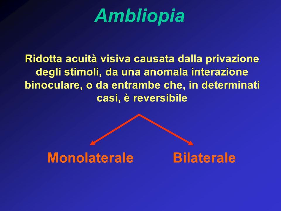 Ridotta acuità visiva causata dalla privazione degli stimoli, da una anomala interazione binoculare, o da entrambe che, in determinati casi, è reversi