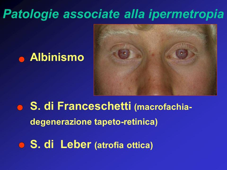 Albinismo S. di Franceschetti (macrofachia- degenerazione tapeto-retinica) S. di Leber (atrofia ottica) Patologie associate alla ipermetropia
