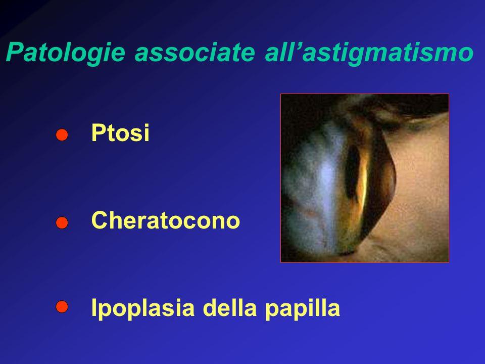 Ptosi Cheratocono Ipoplasia della papilla Patologie associate allastigmatismo