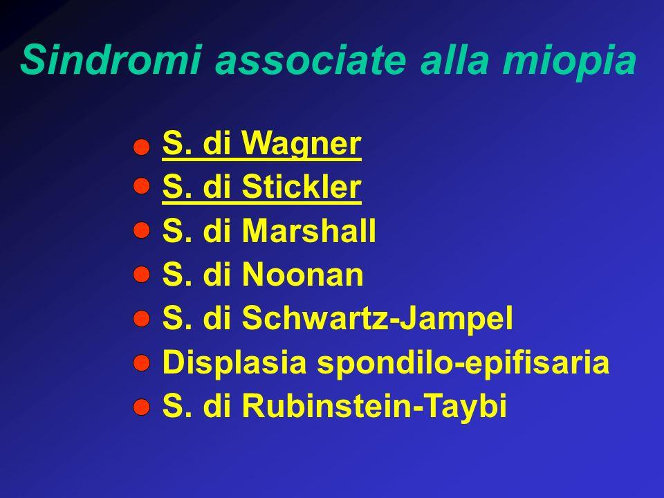 Sindromi associate alla miopia S. di Wagner S. di Stickler S. di Marshall S. di Noonan S. di Schwartz-Jampel Displasia spondilo-epifisaria S. di Rubin