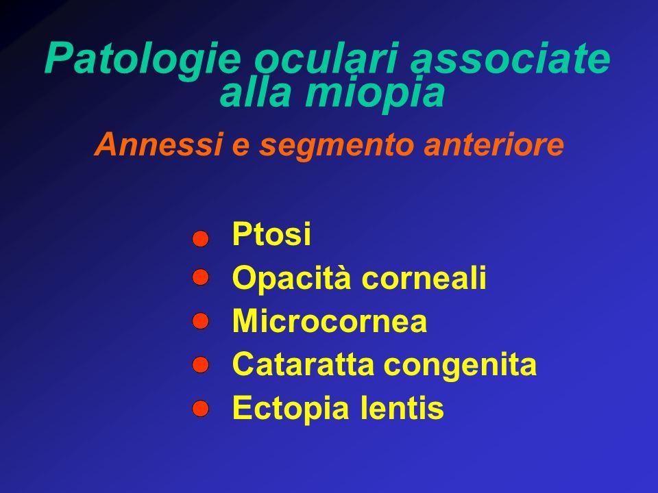 Patologie oculari associate alla miopia Annessi e segmento anteriore Ptosi Opacità corneali Microcornea Cataratta congenita Ectopia lentis