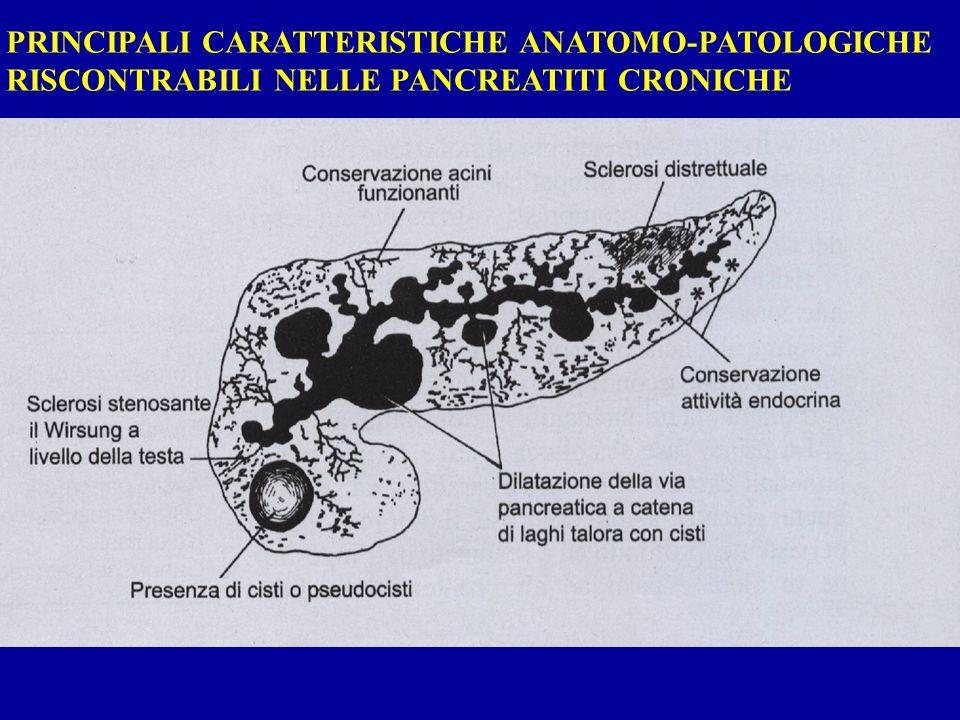 PRINCIPALI CARATTERISTICHE ANATOMO-PATOLOGICHE RISCONTRABILI NELLE PANCREATITI CRONICHE