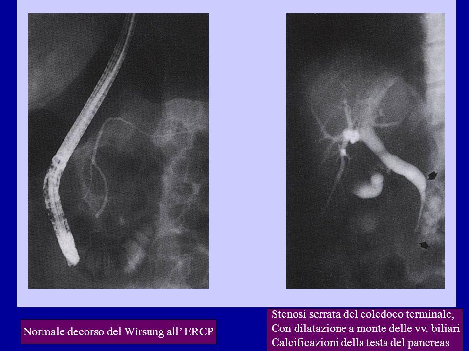 Normale decorso del Wirsung all ERCP Stenosi serrata del coledoco terminale, Con dilatazione a monte delle vv. biliari Calcificazioni della testa del