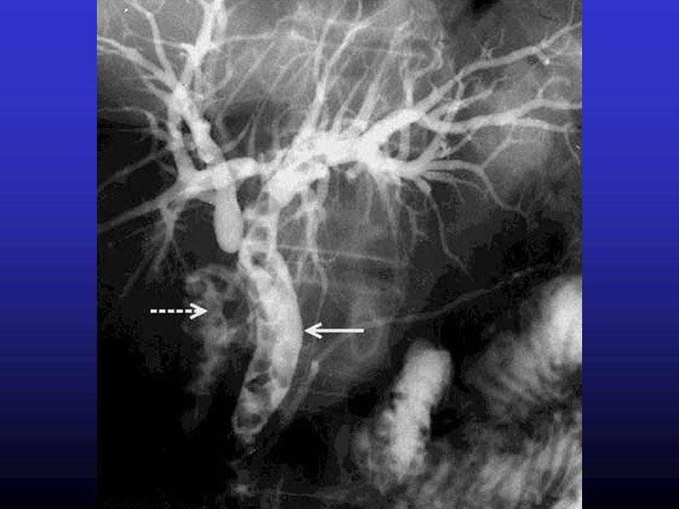 Litiasi biliare CLINICA Diagnosi differenziale Malattia Ulcerosa Peptica Pancreatite Reflusso Gastroesofageo Angina Pectoris Ostruzione Intestinale Epatopatie Dolore Intercostale Sindrome dellIntestino Irritabile Litiasi Renale