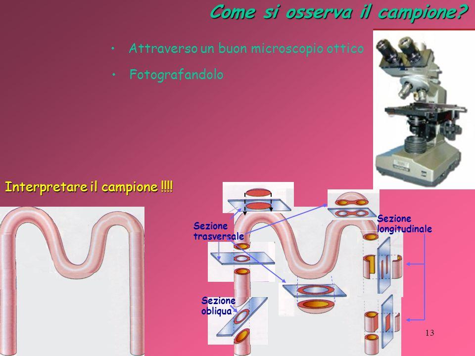 Come si osserva il campione? Attraverso un buon microscopio ottico Fotografandolo Interpretare il campione !!!! Sezione trasversale Sezione obliqua Se