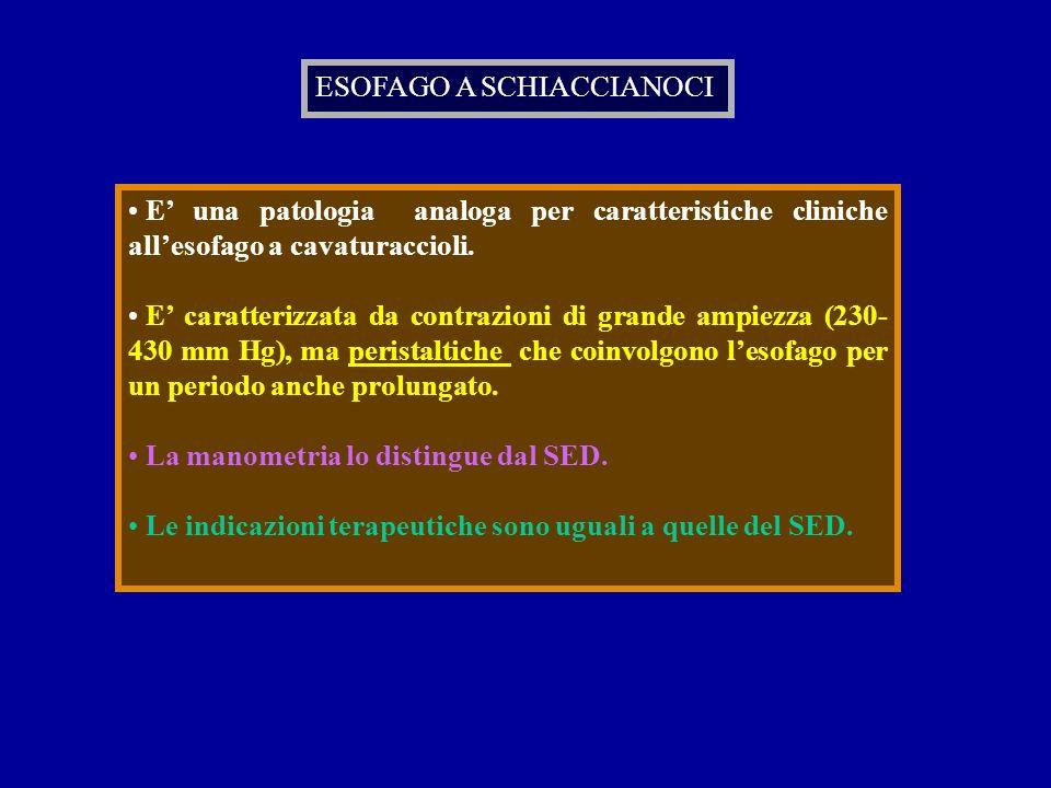 ESOFAGO A SCHIACCIANOCI E una patologia analoga per caratteristiche cliniche allesofago a cavaturaccioli. E caratterizzata da contrazioni di grande am