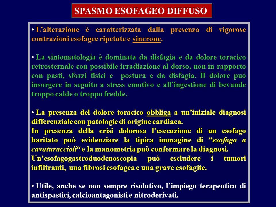 SPASMO ESOFAGEO DIFFUSO Lalterazione è caratterizzata dalla presenza di vigorose contrazioni esofagee ripetute e sincrone. La sintomatologia è dominat