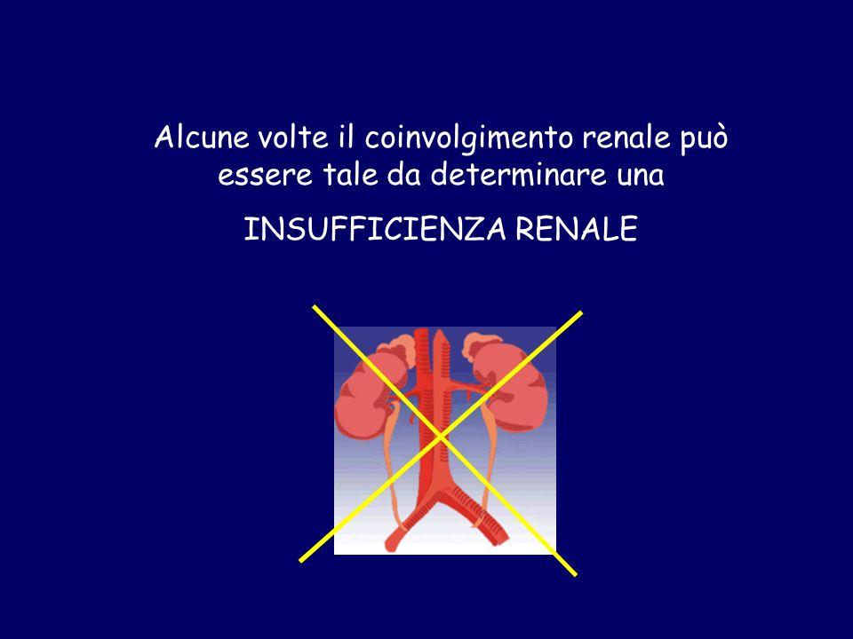 Alcune volte il coinvolgimento renale può essere tale da determinare una INSUFFICIENZA RENALE