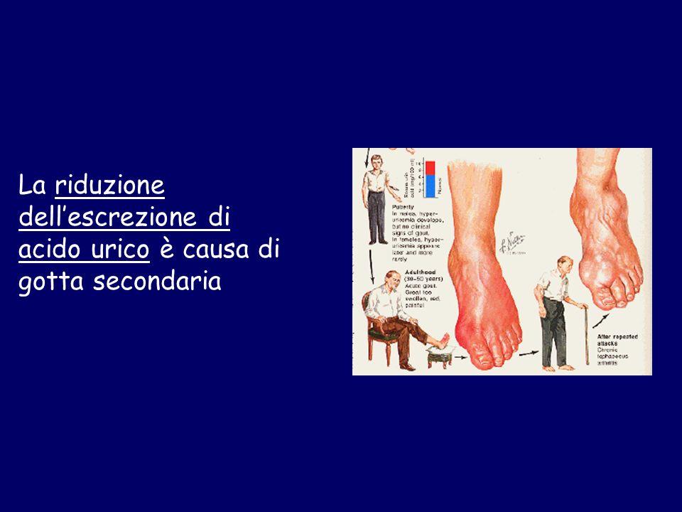 La riduzione dellescrezione di acido urico è causa di gotta secondaria