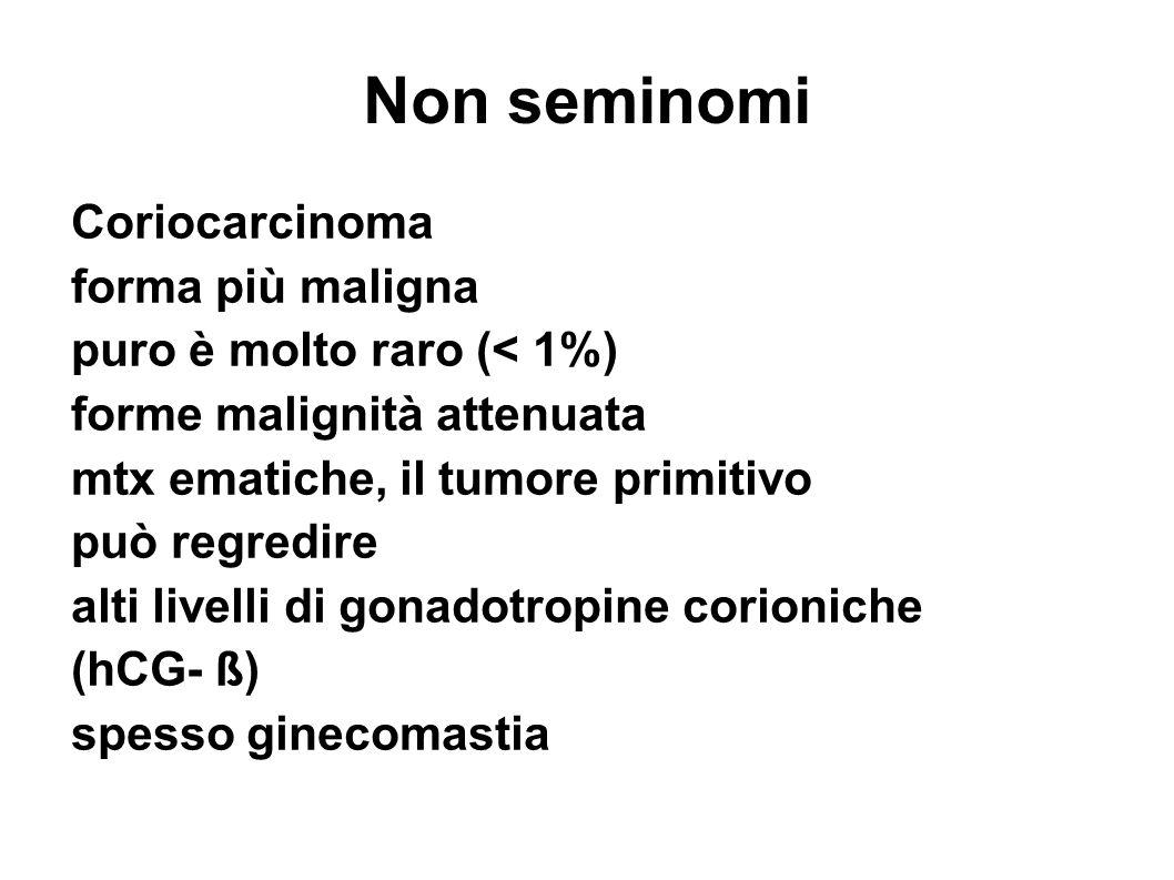 Non seminomi Coriocarcinoma forma più maligna puro è molto raro (< 1%) forme malignità attenuata mtx ematiche, il tumore primitivo può regredire alti