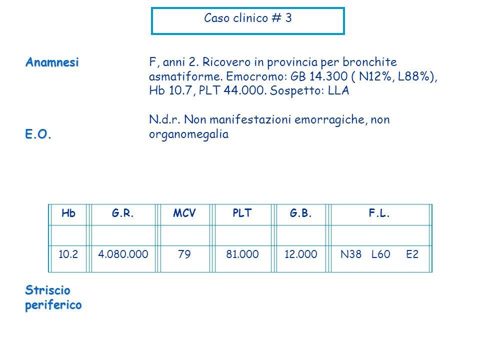 Caso clinico # 3 F, anni 2. Ricovero in provincia per bronchite asmatiforme. Emocromo: GB 14.300 ( N12%, L88%), Hb 10.7, PLT 44.000. Sospetto: LLA N.d