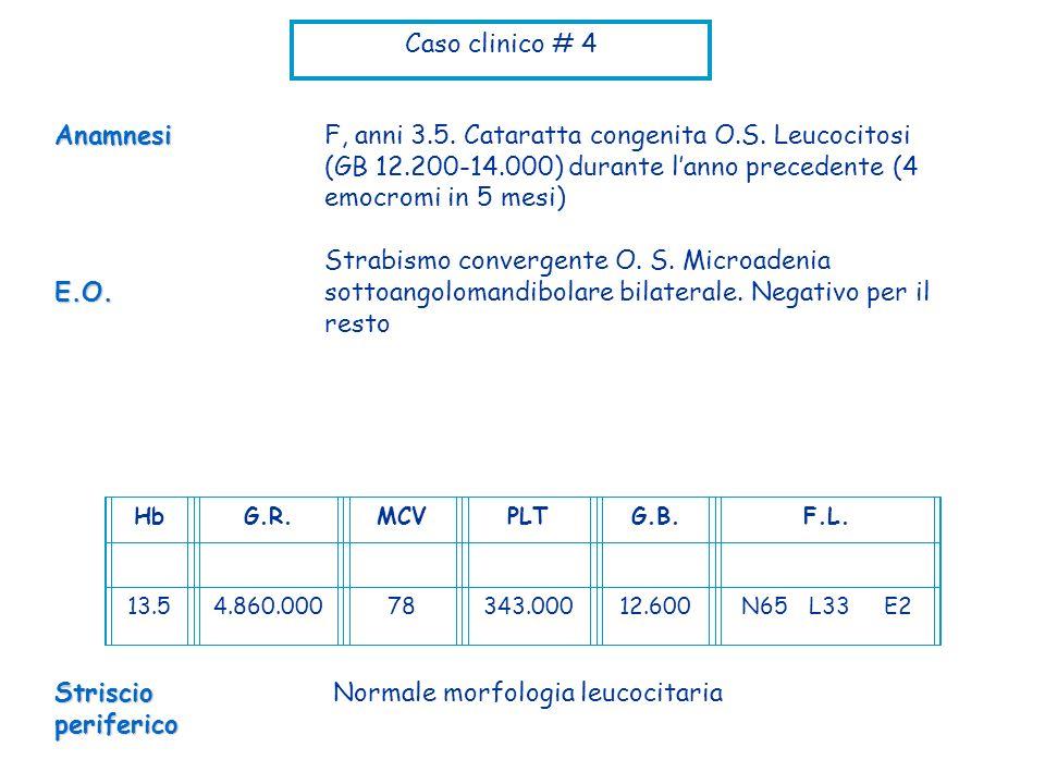Caso clinico # 4 F, anni 3.5. Cataratta congenita O.S. Leucocitosi (GB 12.200-14.000) durante lanno precedente (4 emocromi in 5 mesi) Strabismo conver