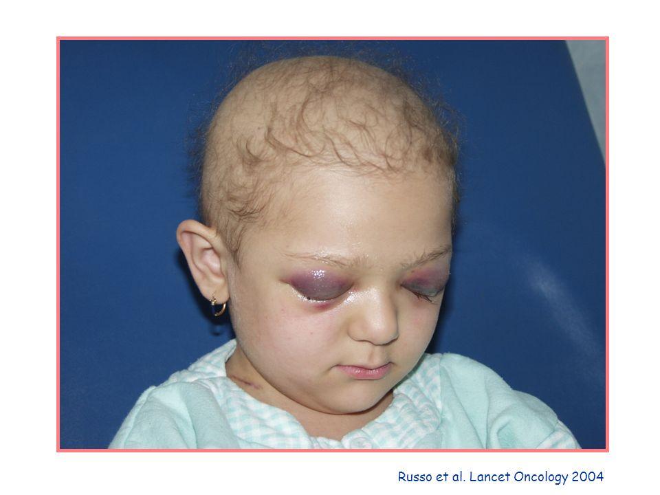 Russo et al. Lancet Oncology 2004
