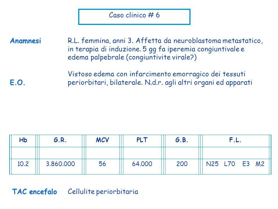 Caso clinico # 6 R.L. femmina, anni 3. Affetta da neuroblastoma metastatico, in terapia di induzione. 5 gg fa iperemia congiuntivale e edema palpebral