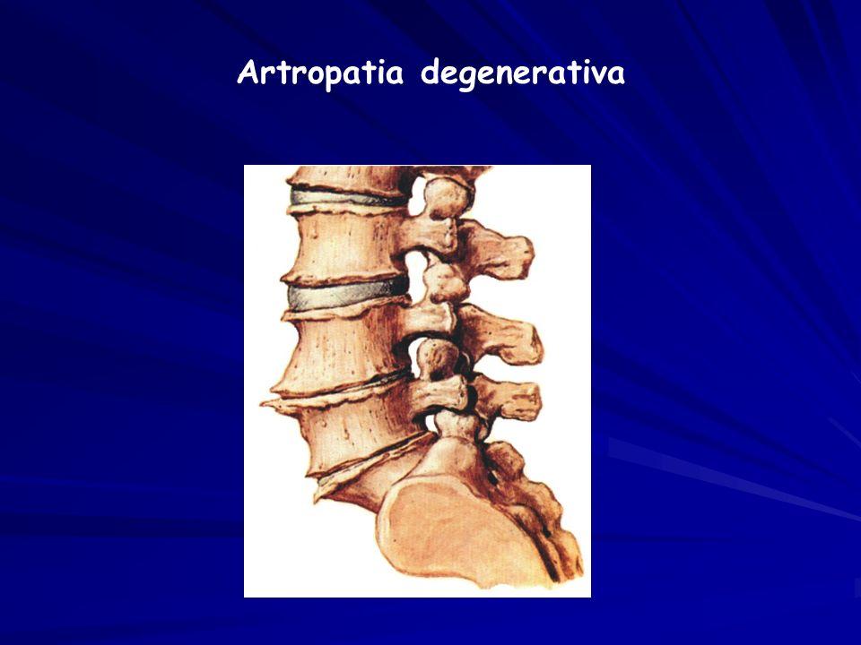 Artropatia degenerativa
