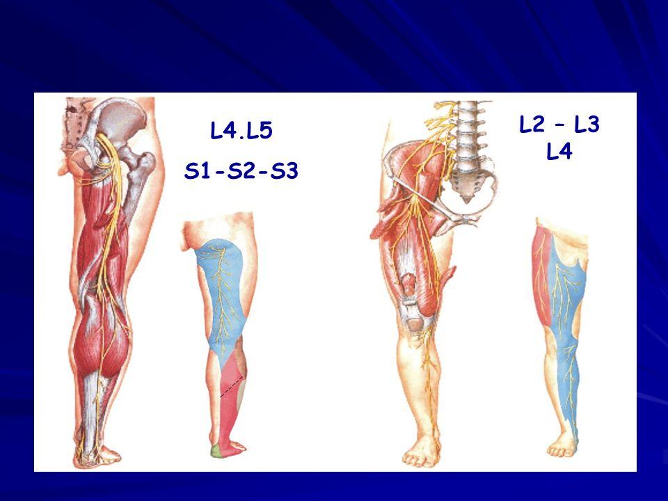 L2 L3 Retrolisthesis