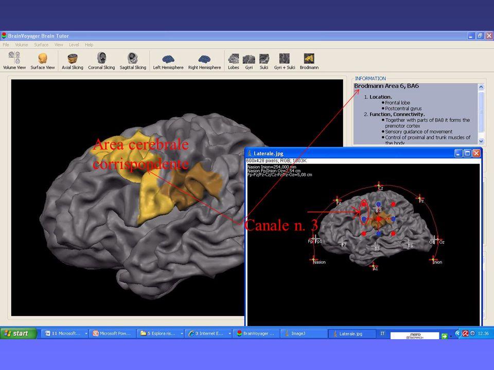 Se i canali attivi non corrispondono a quelli dellipotesi sperimentale, tramite S.T.B.M., è posibile esportare limmagine con larea cerebrale indagata