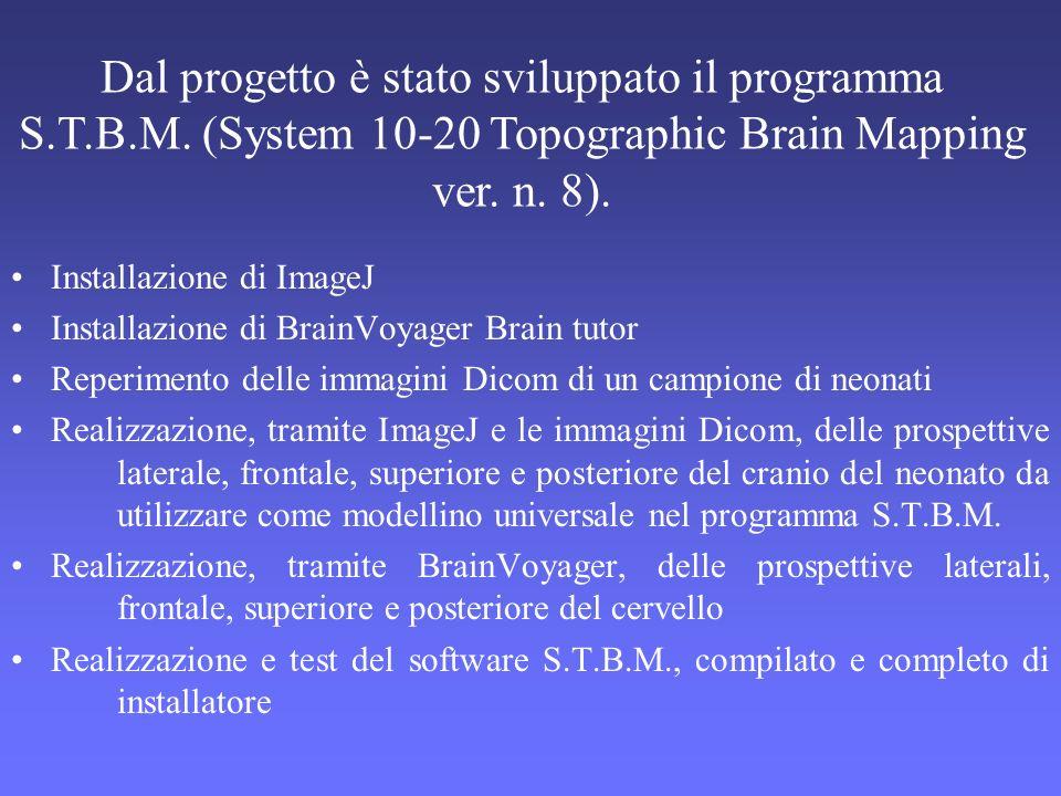 Dal progetto è stato sviluppato il programma S.T.B.M. (System 10-20 Topographic Brain Mapping ver. n. 8). Installazione di ImageJ Installazione di Bra