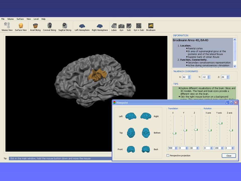 Il modellino di cervello è ricavato ogni volta dal programma BrainVojager Brain Tutor, in base allarea cerebrale sotto indagine, che consente di visualizzare, su un cervello tridimensionale, solchi, circonvoluzioni e aree di Brodmann con relative funzioni e localizzazioni.