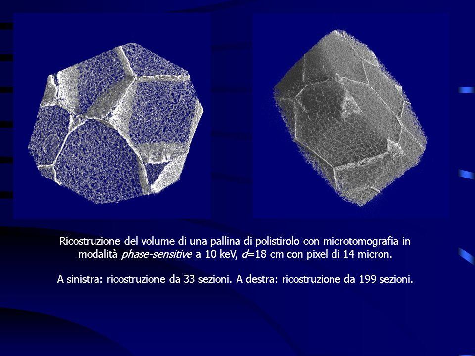 Ricostruzione del volume di una pallina di polistirolo con microtomografia in modalità phase-sensitive a 10 keV, d=18 cm con pixel di 14 micron. A sin