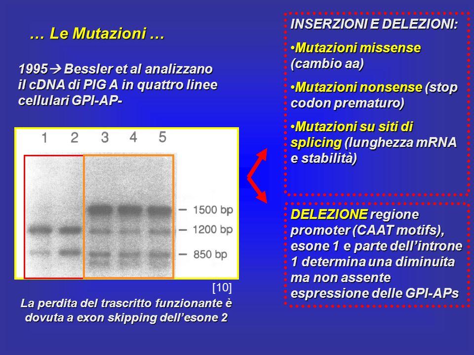 … Le Mutazioni … 1995 Bessler et al analizzano il cDNA di PIG A in quattro linee cellulari GPI-AP- La perdita del trascritto funzionante è dovuta a ex