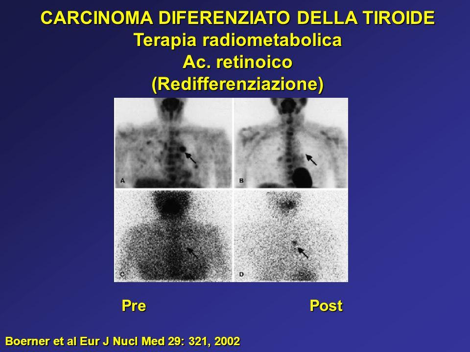 CARCINOMA DIFERENZIATO DELLA TIROIDE Terapia radiometabolica Ac. retinoico (Redifferenziazione) PrePost Boerner et al Eur J Nucl Med 29: 321, 2002