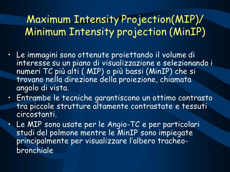 Le immagini sono ottenute proiettando il volume di interesse su un piano di visualizzazione e selezionando i numeri TC più alti ( MIP) o più bassi (Mi