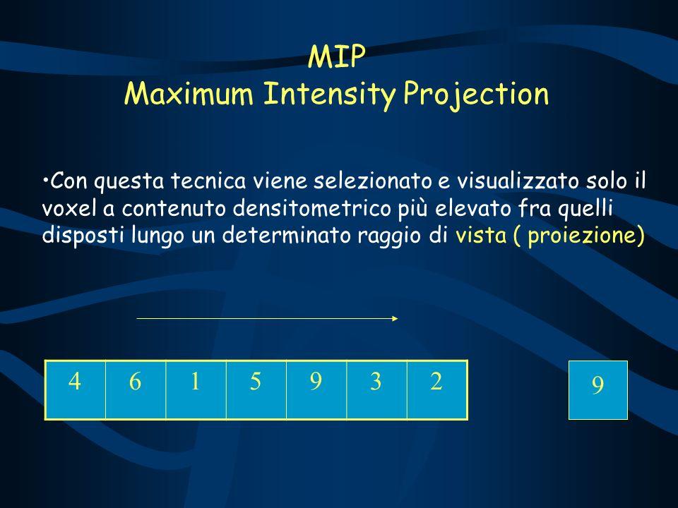 MIP Maximum Intensity Projection Con questa tecnica viene selezionato e visualizzato solo il voxel a contenuto densitometrico più elevato fra quelli disposti lungo un determinato raggio di vista ( proiezione) 4615932 9