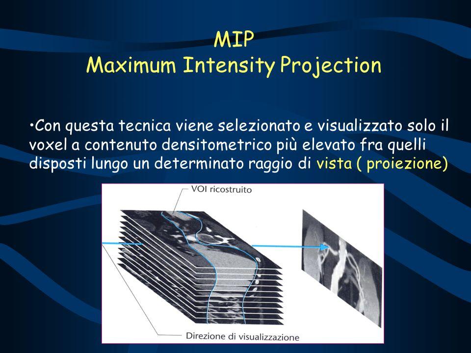 MIP Maximum Intensity Projection Con questa tecnica viene selezionato e visualizzato solo il voxel a contenuto densitometrico più elevato fra quelli disposti lungo un determinato raggio di vista ( proiezione)