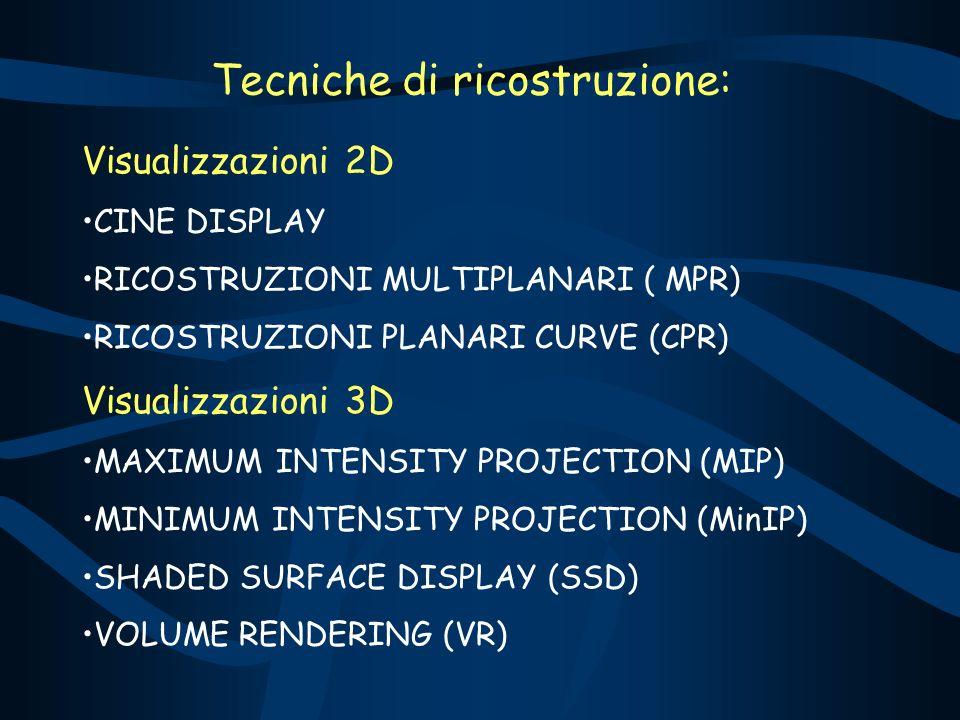 Tecniche di ricostruzione: Visualizzazioni 2D CINE DISPLAY RICOSTRUZIONI MULTIPLANARI ( MPR) RICOSTRUZIONI PLANARI CURVE (CPR) Visualizzazioni 3D MAXIMUM INTENSITY PROJECTION (MIP) MINIMUM INTENSITY PROJECTION (MinIP) SHADED SURFACE DISPLAY (SSD) VOLUME RENDERING (VR)