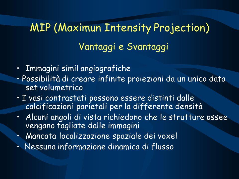 MIP (Maximun Intensity Projection) Vantaggi e Svantaggi Immagini simil angiografiche Possibilità di creare infinite proiezioni da un unico data set vo