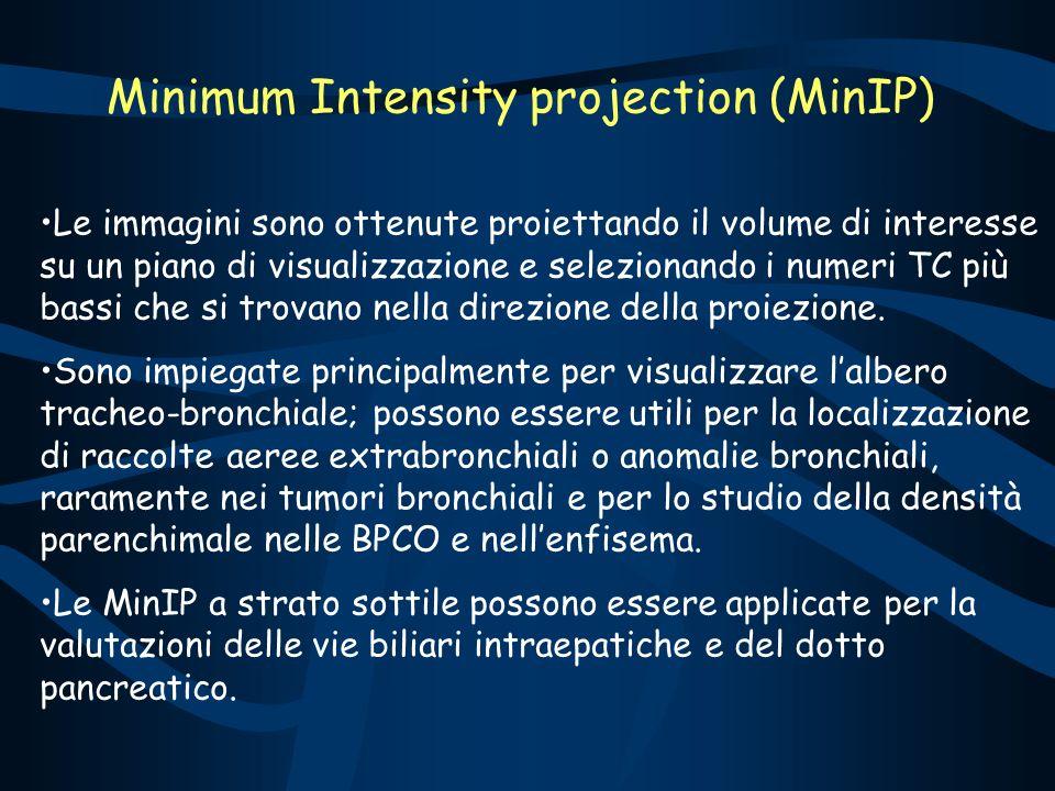 Minimum Intensity projection (MinIP) Le immagini sono ottenute proiettando il volume di interesse su un piano di visualizzazione e selezionando i numeri TC più bassi che si trovano nella direzione della proiezione.