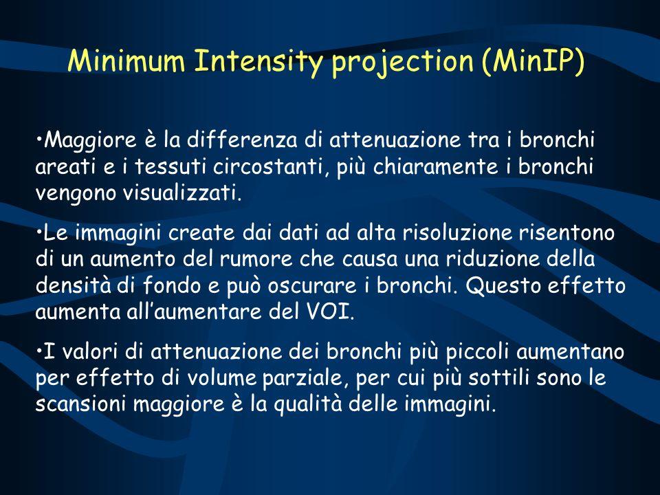 Minimum Intensity projection (MinIP) Maggiore è la differenza di attenuazione tra i bronchi areati e i tessuti circostanti, più chiaramente i bronchi vengono visualizzati.