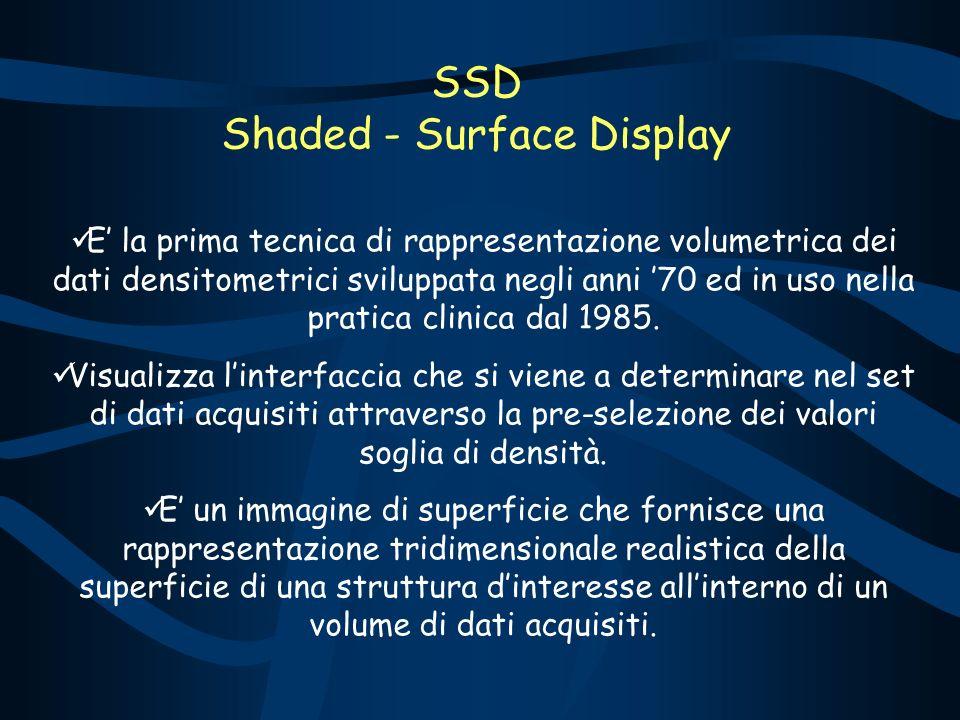 SSD Shaded - Surface Display E la prima tecnica di rappresentazione volumetrica dei dati densitometrici sviluppata negli anni 70 ed in uso nella pratica clinica dal 1985.