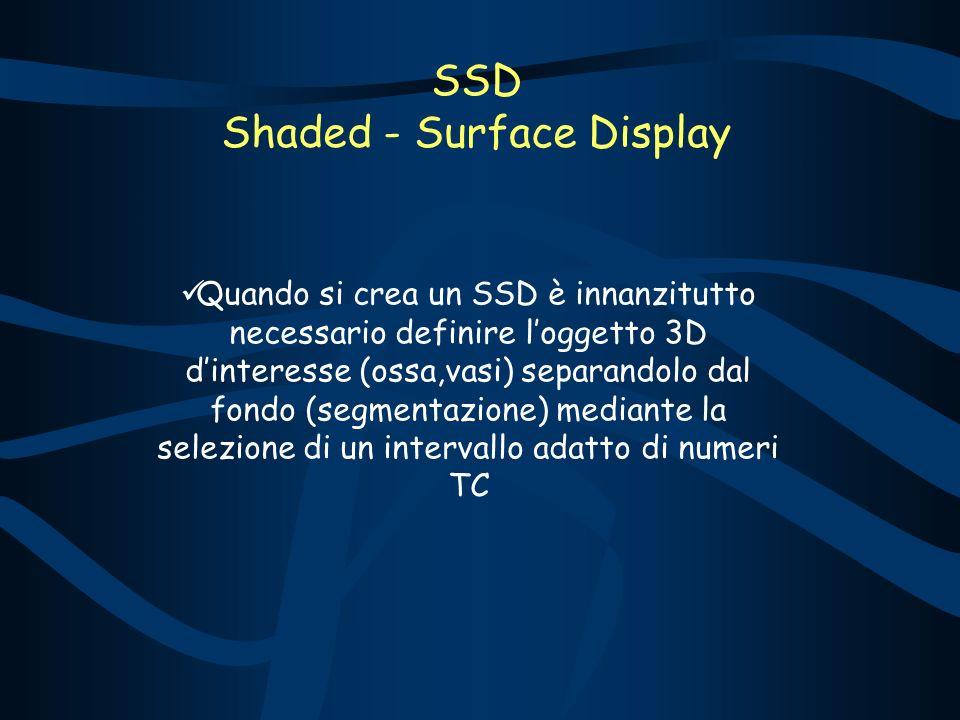 SSD Shaded - Surface Display Quando si crea un SSD è innanzitutto necessario definire loggetto 3D dinteresse (ossa,vasi) separandolo dal fondo (segmentazione) mediante la selezione di un intervallo adatto di numeri TC
