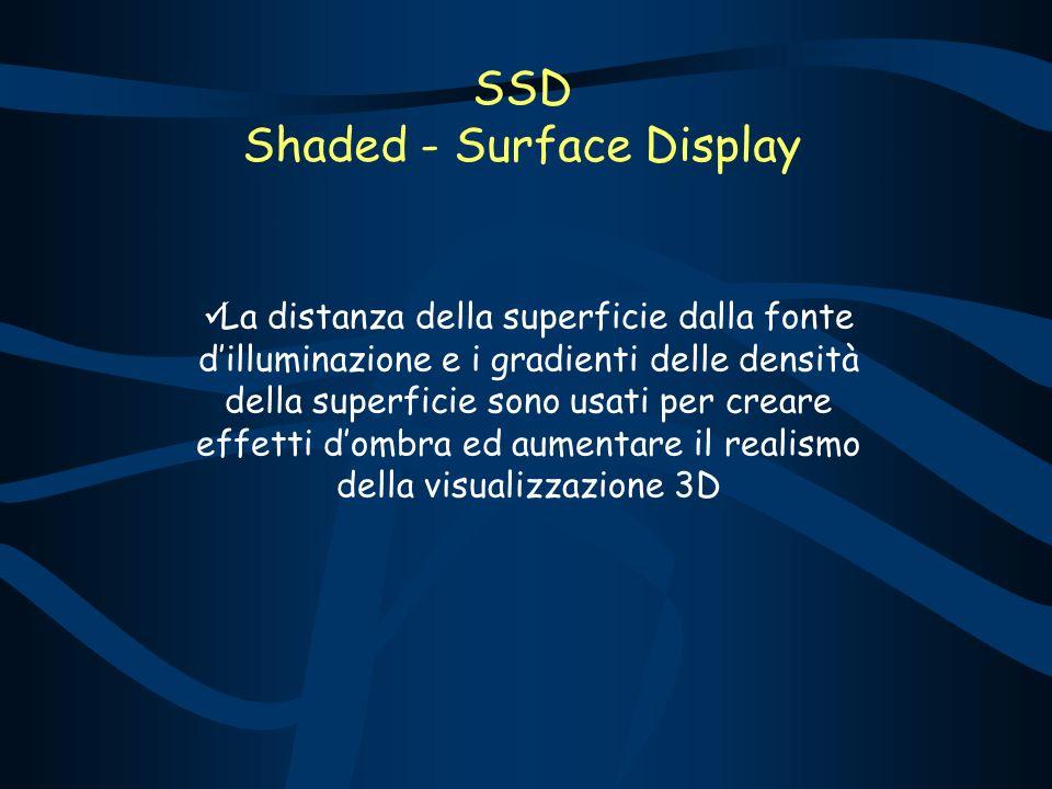 SSD Shaded - Surface Display La distanza della superficie dalla fonte dilluminazione e i gradienti delle densità della superficie sono usati per creare effetti dombra ed aumentare il realismo della visualizzazione 3D
