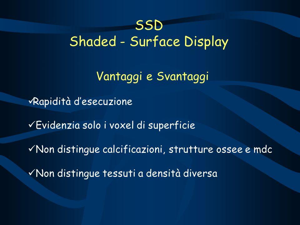 SSD Shaded - Surface Display Vantaggi e Svantaggi Rapidità desecuzione Evidenzia solo i voxel di superficie Non distingue calcificazioni, strutture ossee e mdc Non distingue tessuti a densità diversa