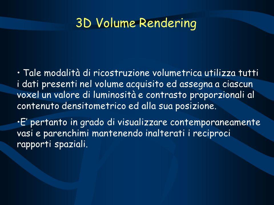 3D Volume Rendering Tale modalità di ricostruzione volumetrica utilizza tutti i dati presenti nel volume acquisito ed assegna a ciascun voxel un valore di luminosità e contrasto proporzionali al contenuto densitometrico ed alla sua posizione.