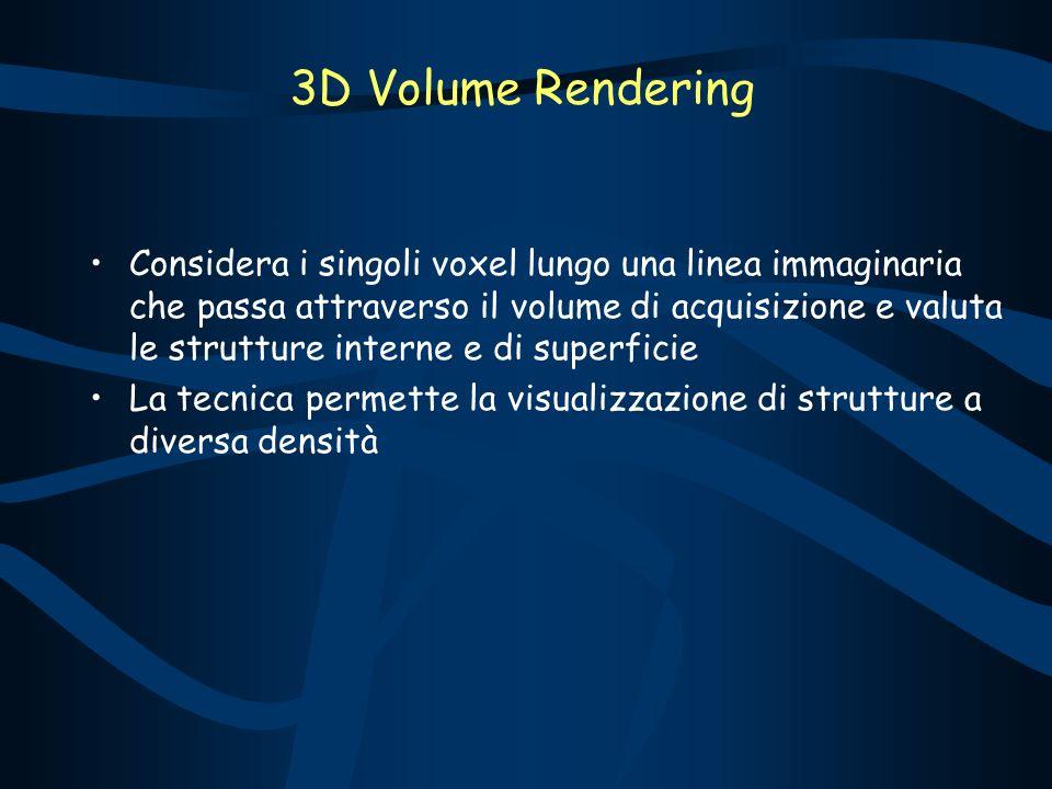 Considera i singoli voxel lungo una linea immaginaria che passa attraverso il volume di acquisizione e valuta le strutture interne e di superficie La tecnica permette la visualizzazione di strutture a diversa densità 3D Volume Rendering