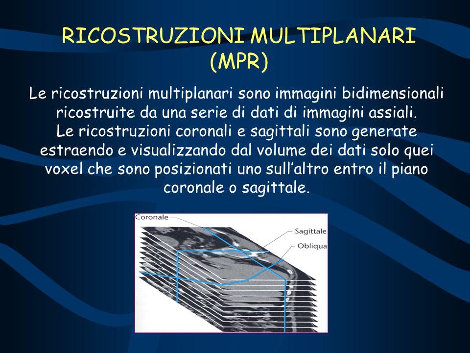 RICOSTRUZIONI MULTIPLANARI (MPR) Le ricostruzioni multiplanari sono immagini bidimensionali ricostruite da una serie di dati di immagini assiali. Le r